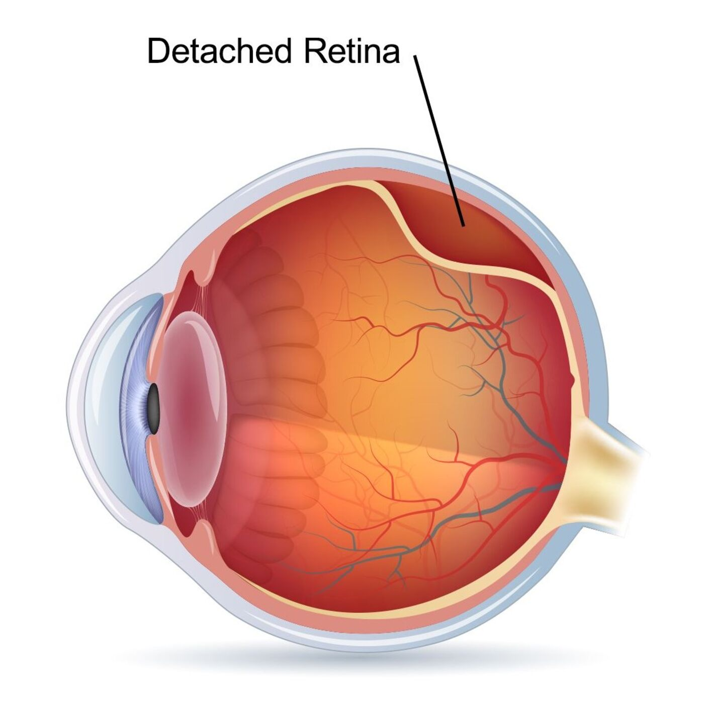 Ep. 011: Everything You Wanted to Know About Retinal Detachments with Sugat Patel, MD