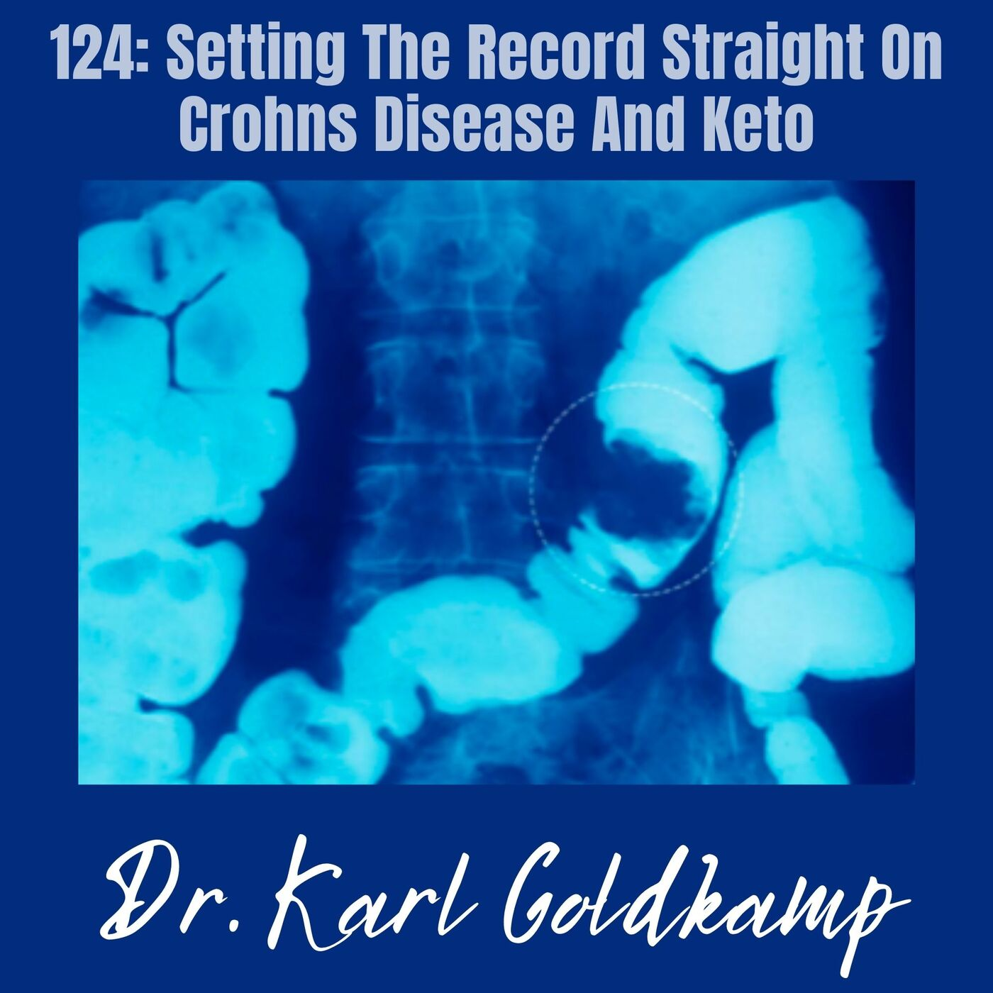 124: Setting The Record Straight On Crohns Disease And Keto
