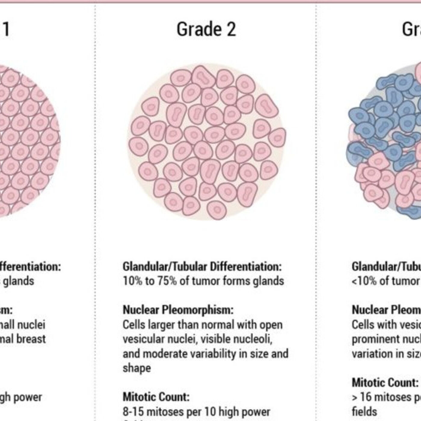 Understanding Breast Cancer Staging and Tumor Classification