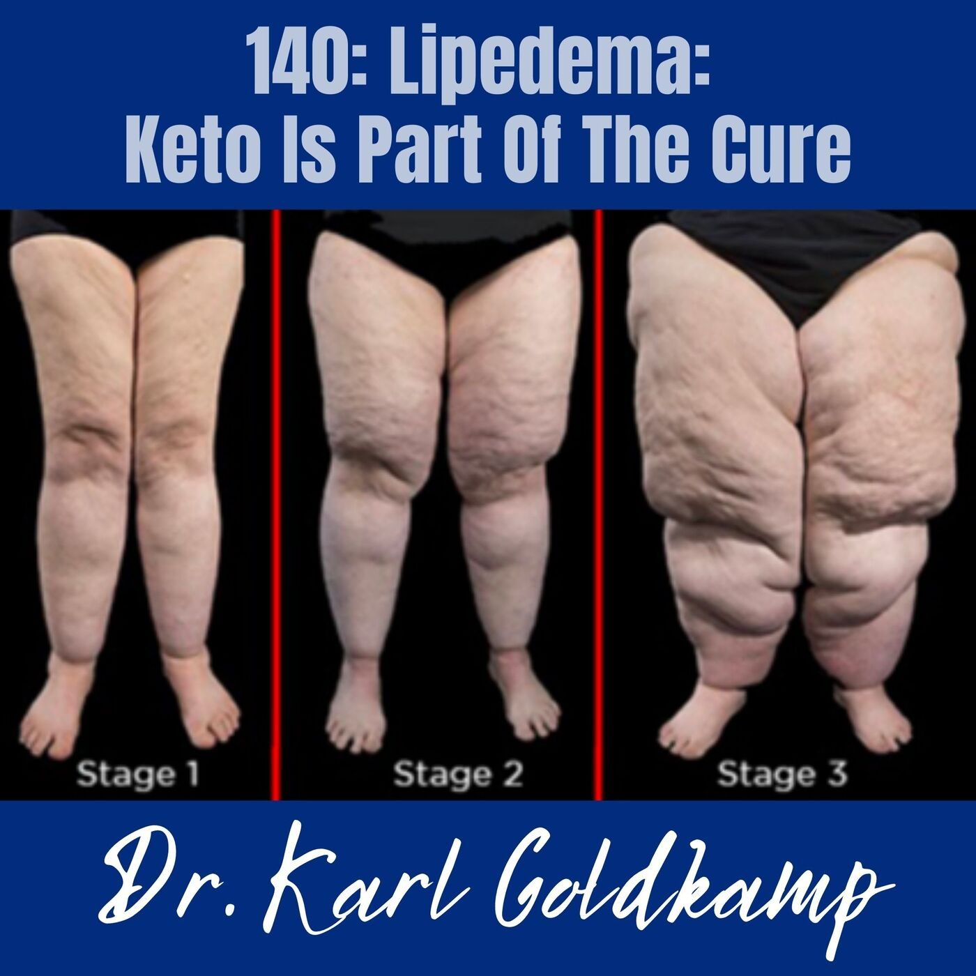 140: Lipedema: Keto Is Part Of The Cure