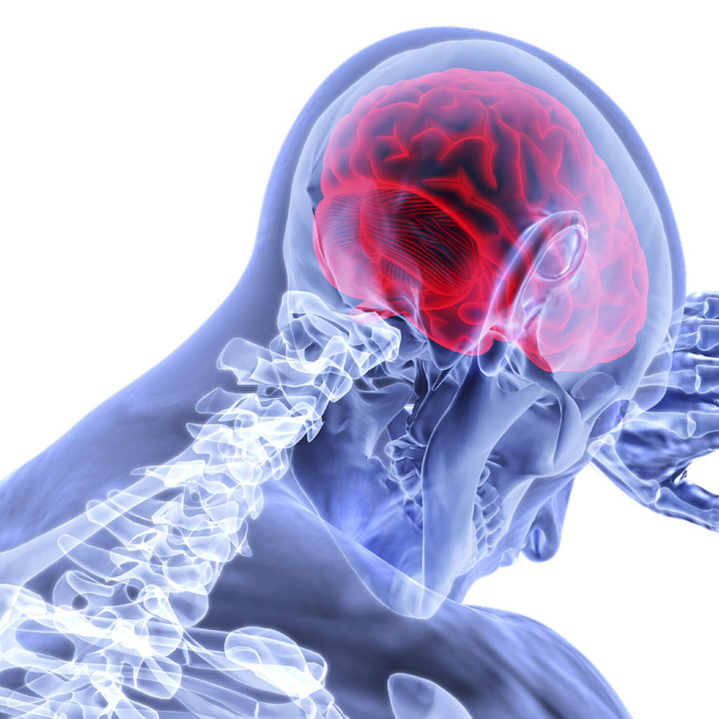 Post-Concussion Syndrome and the Upper Cervical Spine