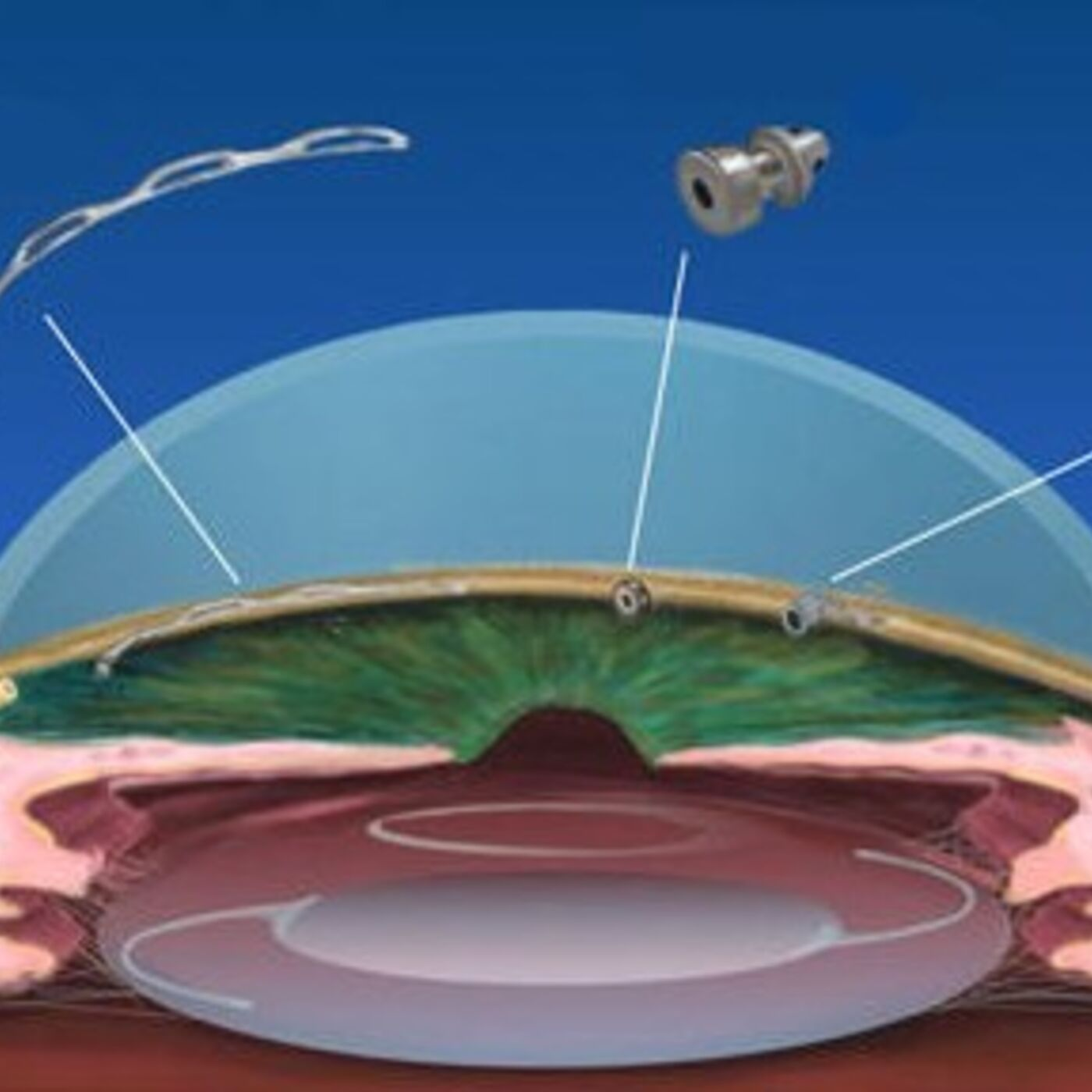 Ep. 015: The New Category of Glaucoma Surgeries (MIGS) with Ashley San Filippo, MD